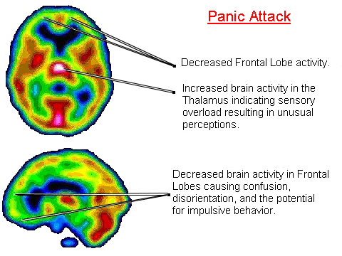 panic-attacks-facts